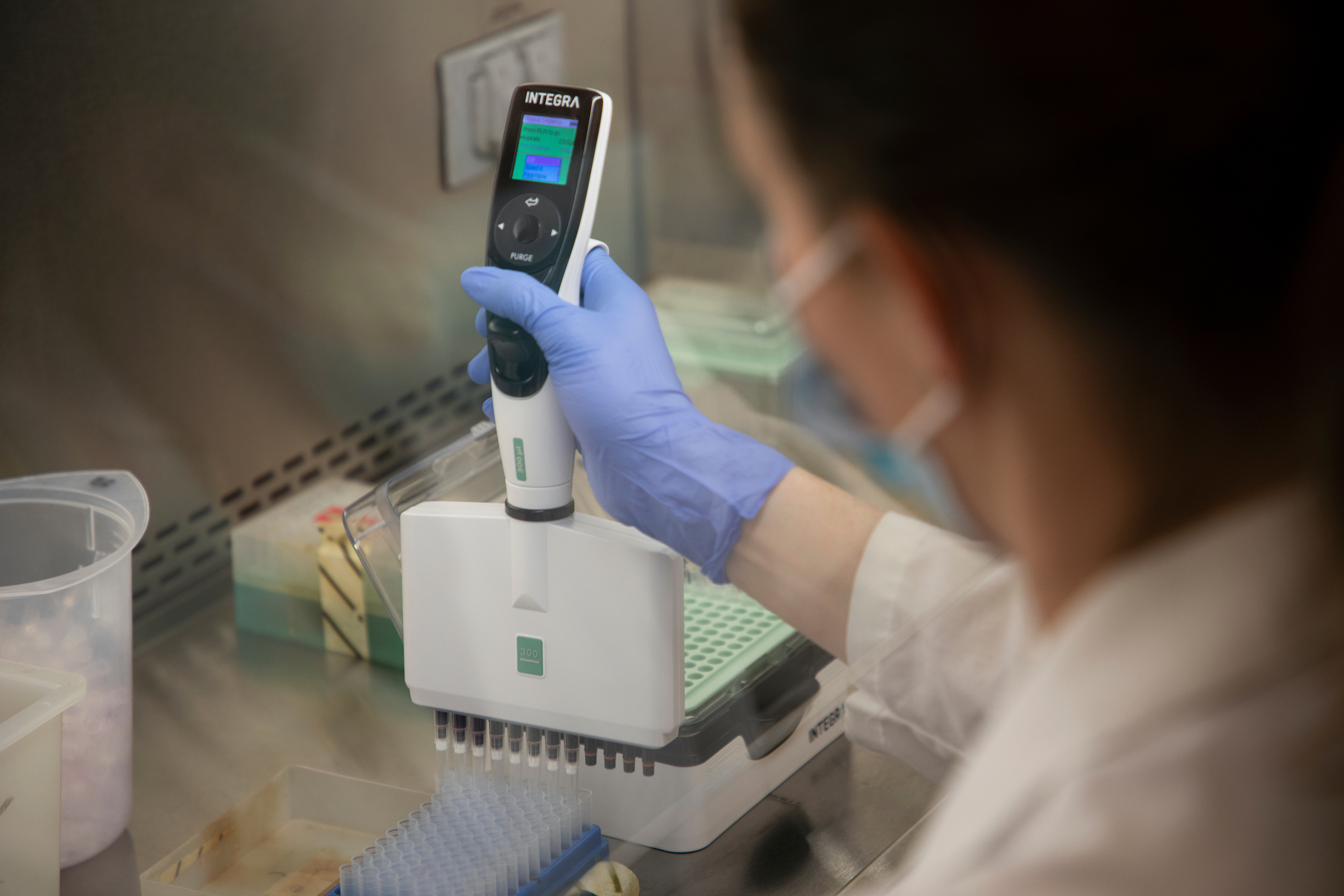 Image looking over a person's shoulder as they pipette in a lab.